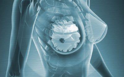 Tumore al seno, tre principali tipologie e come trattarle