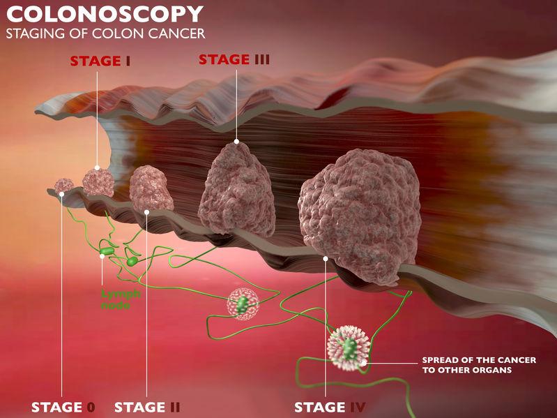 Grafica con i 4 stadi del cancro colonrettale